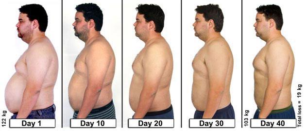 veszteség súlyos elhízás