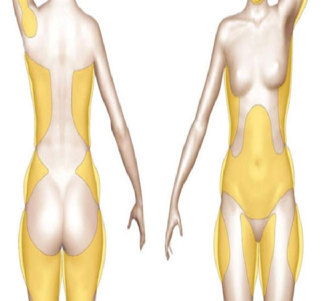a férfi és női súlycsökkenés közötti különbség
