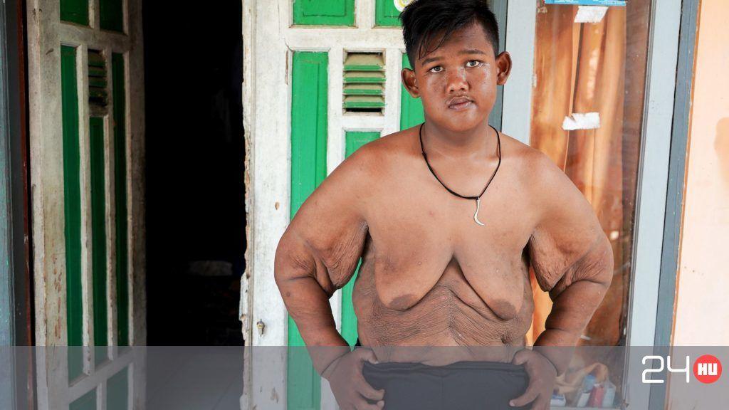 azt mondja egy nőnek, hogy lefogy küzdenek a fogyás 31- kor
