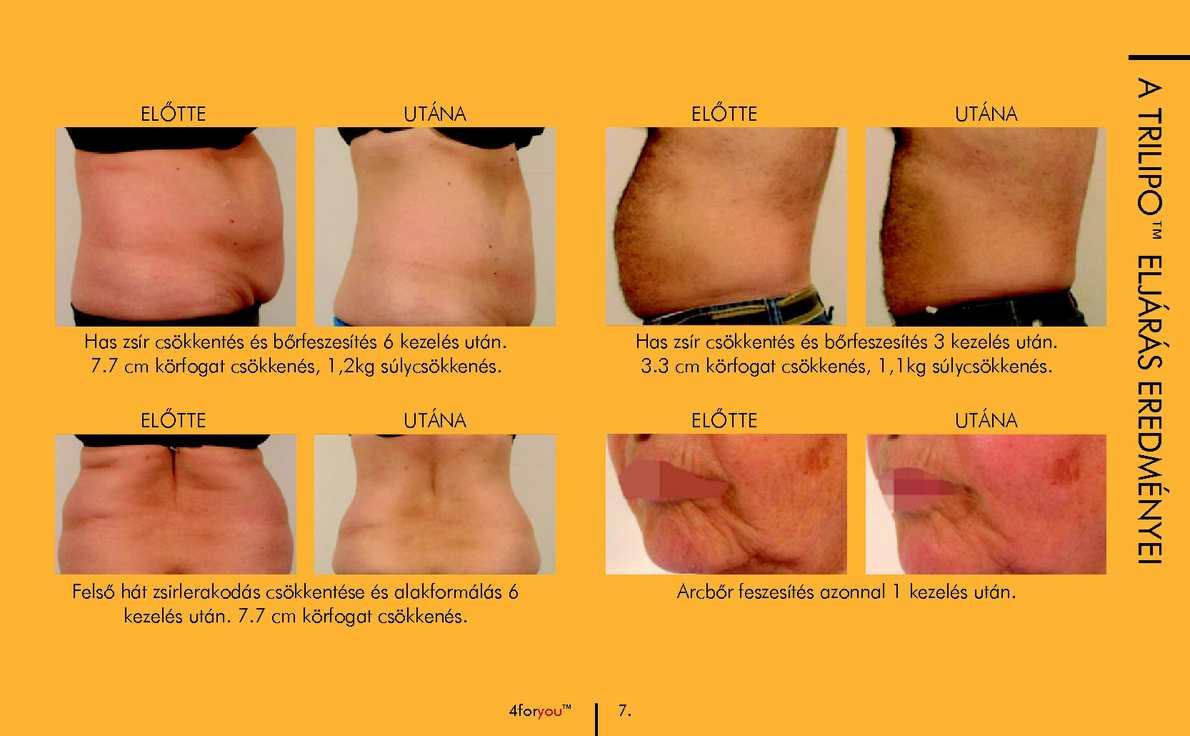 Létezhet olyan, hogy 50-60 kg fogyás után le lógjon a bőr és ne keljen plasztikai sebész?
