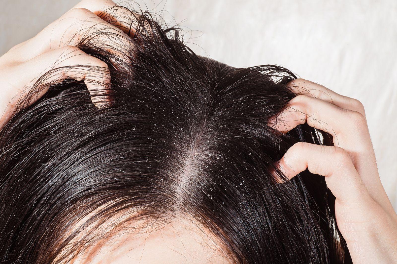 Házi szerek viszkető fejbőrre