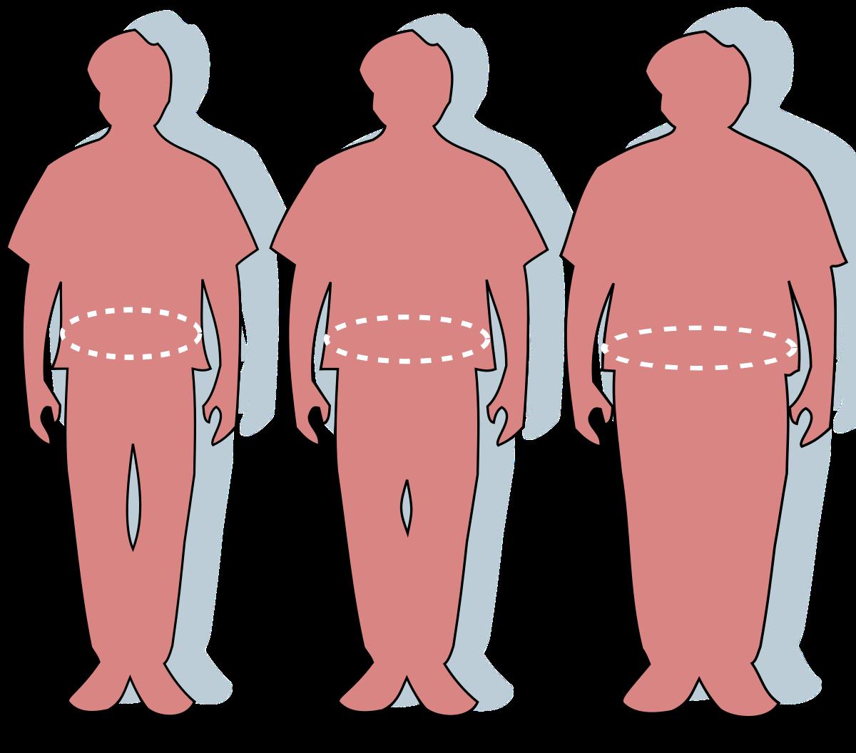 A szerep elhízása a COPD-ben játszik