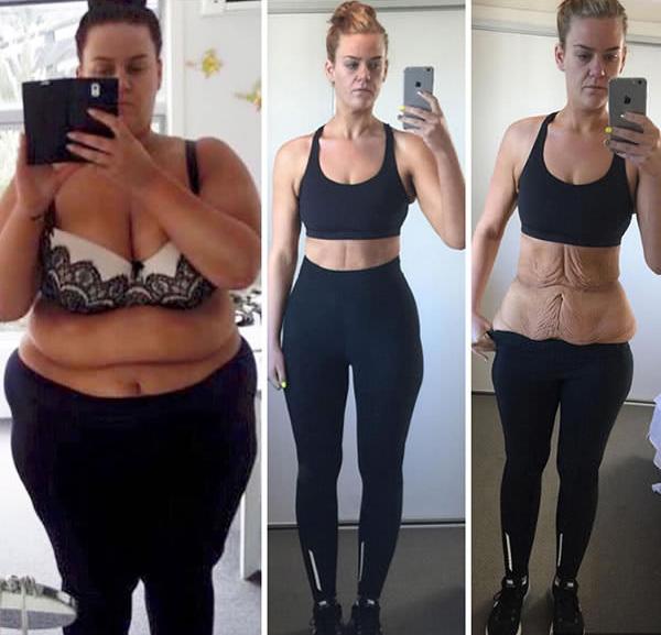 10 kg súlycsökkenés egy hét alatt