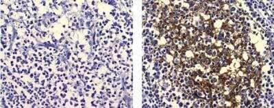 L tirozin (tyrosin) - Amit tudni kell róla (hatása, használata) - keszthelyipiac.hu