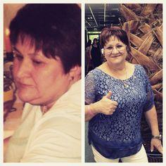 fogyás ilford veszteség súlyos elhízás