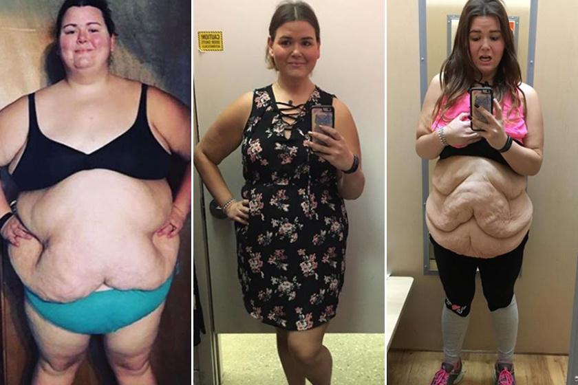 a kövér gyerek a fogyás történetében Fogyás céloldalak