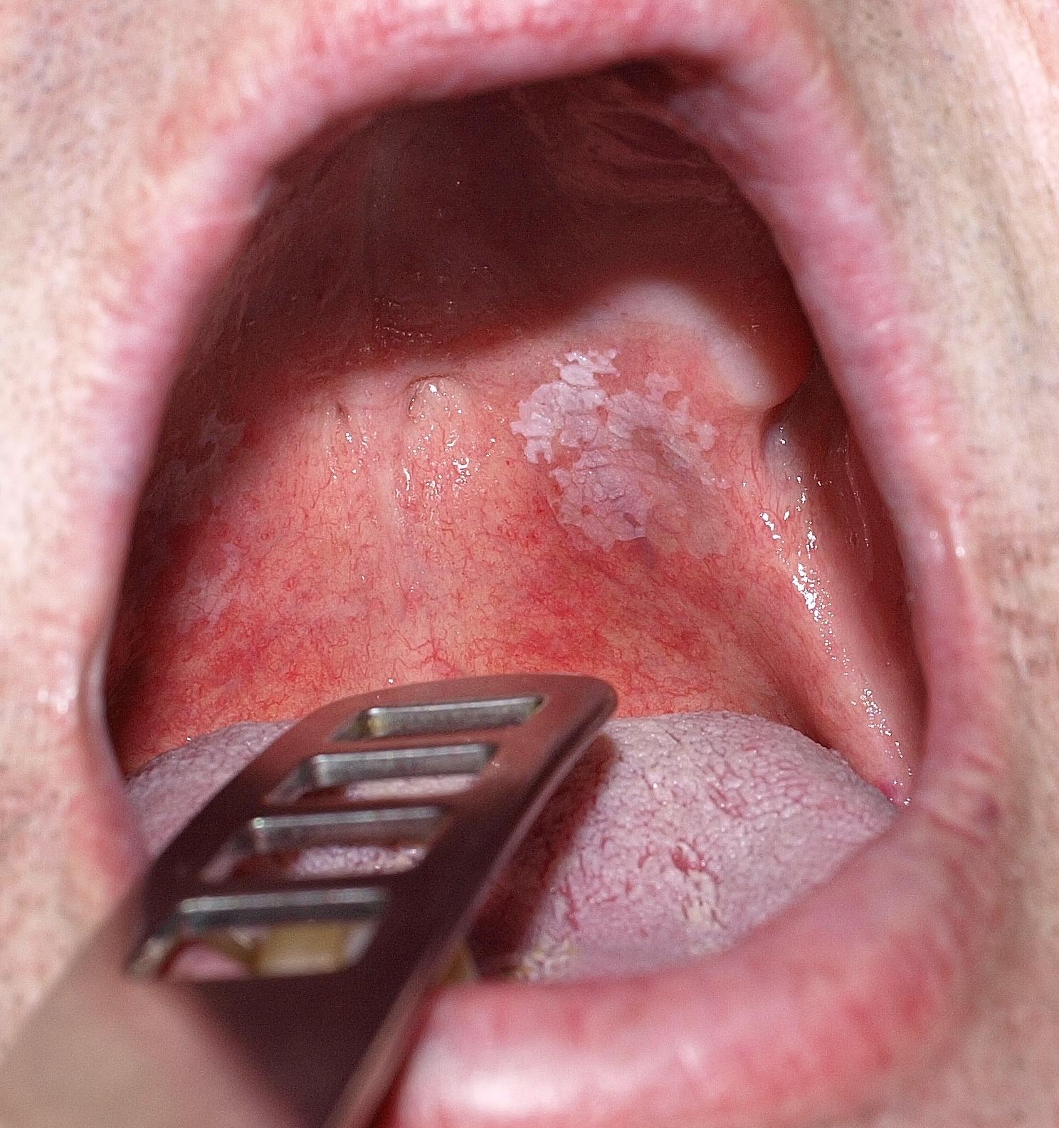 modafinil fogyás fogyás klonopin megvonása