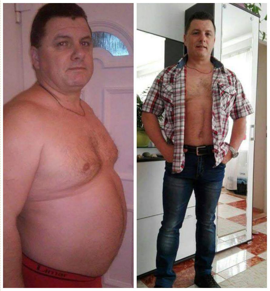 férfi fogyás előtt és után éget-e zsírt az igf lr3