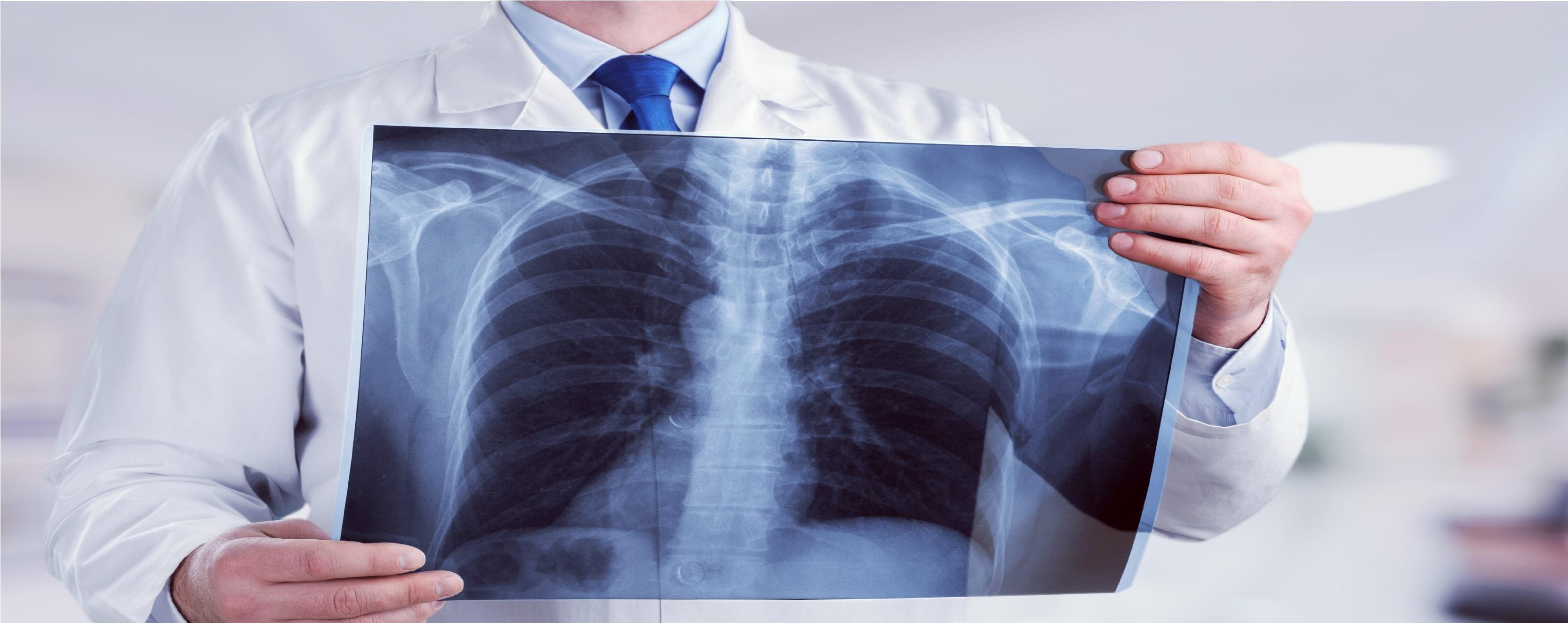 tüdőgyulladás tünetei fogyás őrölt marhahús fogyás