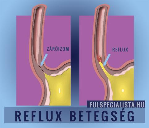 fogyás csecsemő reflux