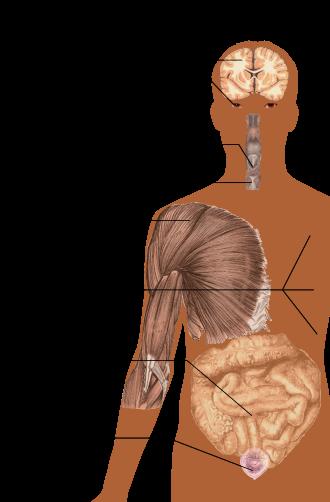 fogyás dysphagia