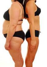 hogyan lehet elveszíteni a zsírlemez súlyát