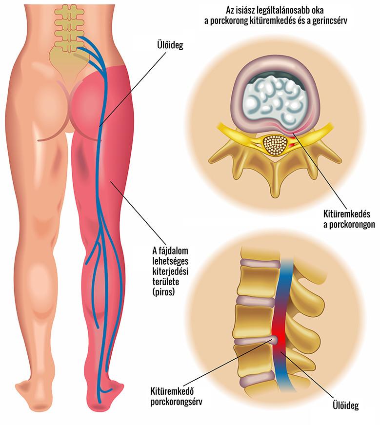 A csípő arthroplastica tribológiai vonatkozásai - PDF Ingyenes letöltés