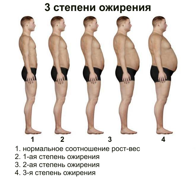 Betegtájékoztató az elhízásról