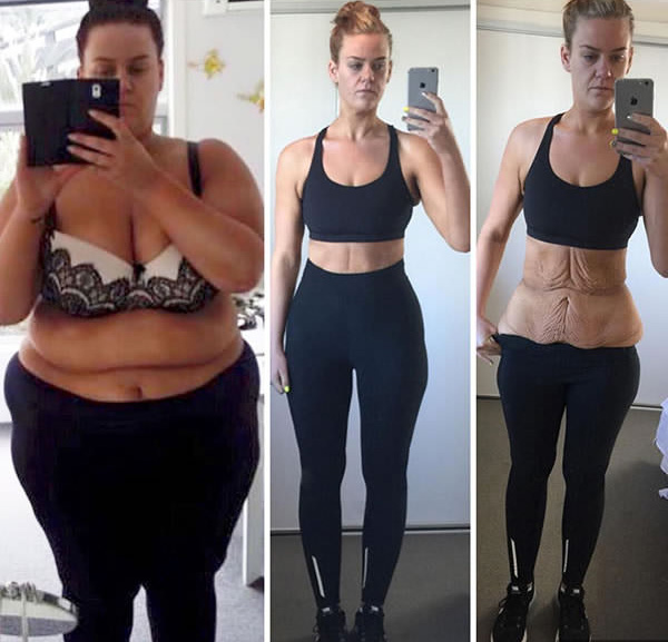 Így adj le 5 kilót 1 hónap alatt   nlc