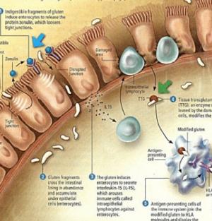 hogyan lehet lefogyni szivárgó bél acetaminofen fogyás