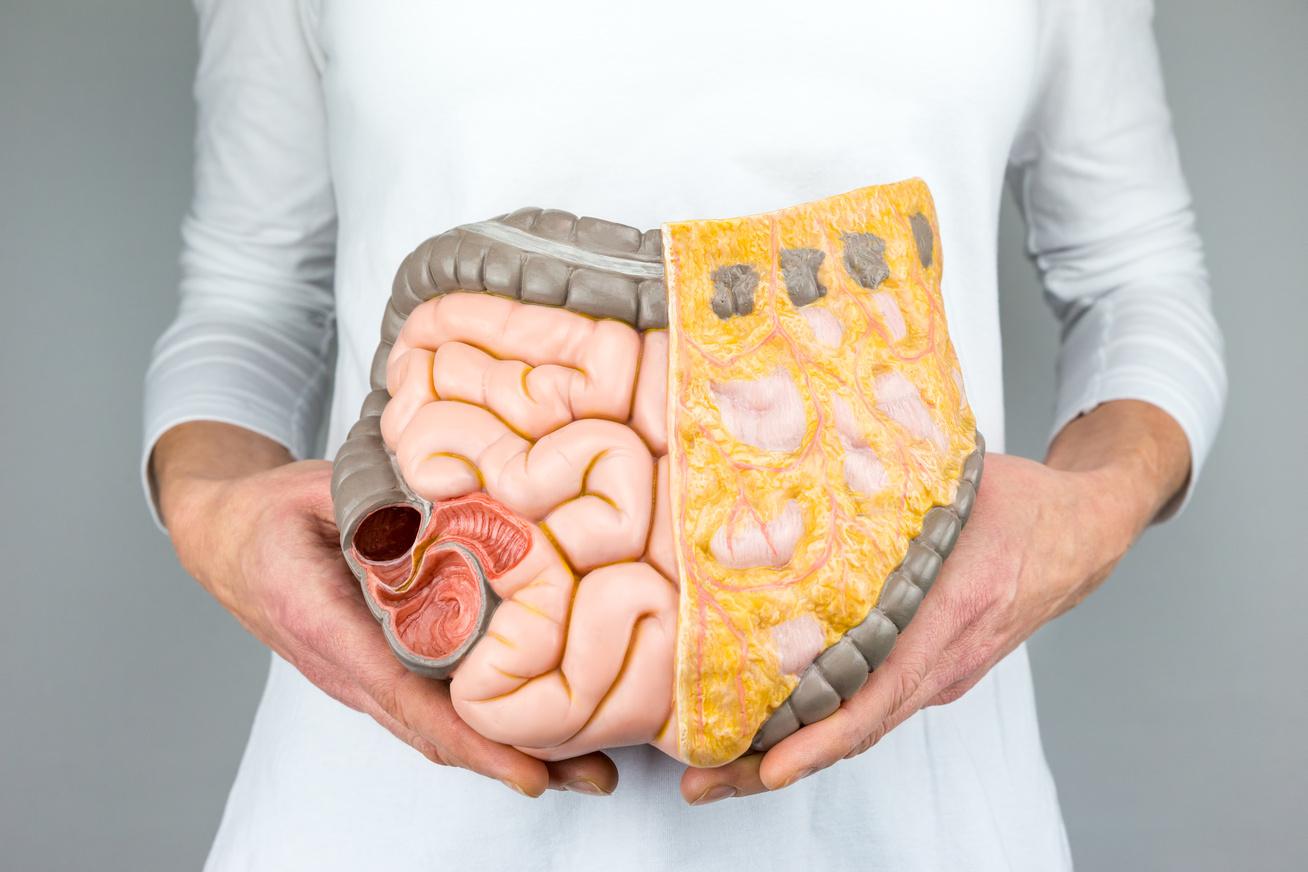 zsírszövet zsírégetése